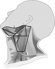 Fig 4. Neck levels included in a supraomohyoid neck dissection— Levels IA, IB, IIA, IIB, III.
