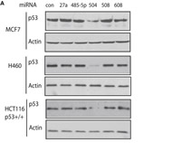 Fig 1. miR-504 Negatively Regulates p53 Protein Levels in Cells(A)