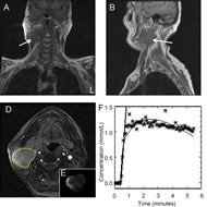 Fig 1. Magnetic resonance imaging (MRI) and 18F-fluoromisonidazole (18F-FMISO) positron emission tomography (PET) images illustrating the hypoxic right neck lymph node of Patient 2 (male, 62 years old, primary tonsil cancer).
