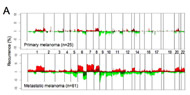Fig 1a. Array-CGH characterization of the primary and metastatic melanoma genomes.
