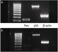 Fig 3.Immunoblotting for Parc and p53. a, control (untreated) cells showing abundant p53 and Parc; b, Parc knockdown after Parc siRNA interference, showing presence of a light Parc band confirming knockdown, but the p53 band still persists.
