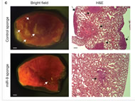 Fig 4c. Bright-field imaging and haematoxylin/eosin staining (H&E) of lungs isolated from mice that received an orthotopic injection of 4T1 cells infected with the miR-9 sponge or control sponge, at 4 weeks after transplantation.