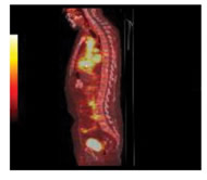 Fig 1b. Sagittal view of PET scan after 4 weeks of treatment.