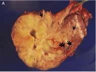 Fig 4. MiTF/TFE family translocation-associated carcinoma.