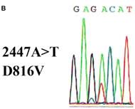 Fig 1b. c-KIT D816V mutation detected in bone marrow.