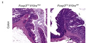 Fig 2i. Representative H&E-stained sections of large bowel at the level of the ileocecal-colic junction from Foxp3CreIl10rafl/wt and Foxp3CreIl10rafl/fl mice.