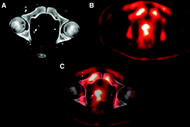 Fig 4. For a representative axial slice, a CT image (A), an FACBC PET image (B), and a registered image (C) are shown.
