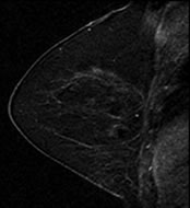 Fig 1b. T1-weighted fat-suppressed contrast-enhanced subtraction MR images show different right breasts with (b) mild BPE.
