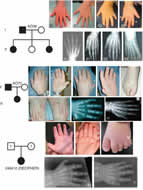 Fig 1. Clinical features and radiographs of affected individuals from families AO39 and AO70 and subject 248412 showing brachydactyly, brachymesophalangy of the second and fifth fingers (better appreciated on the palmar view, arrows), hypoplastic thumbs of variable severity (asterisks) and cutaneous syndactyly of toes (arrow heads).
