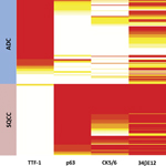 Fig 3. Heatmap of TTF-1, p63, CK5/6, and 34βE12 coexpression profiles in adenocarcinoma vs squamous cell carcinoma.