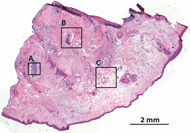 Fig 3. Frozen H&E-stained pathology of excised tissue from Mohs surgery.
