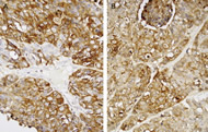 Figure 2. Neuroendocrine marker immunohistochemistry in large cell neuroendocrine carcinoma. (A) Strong reactivity for synaptophysin and for (B) chromogranin-A in a laryngeal tumor (both 400× magnification).