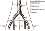Fig 1. Location of lymph node packets and boundaries of dissection for extended pelvic lymphadenectomy, including the inferior mesenteric artery superiorly, the genitofemoral nerve laterally, and the node of Cloquet inferiorly.