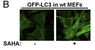 Fig 1b. SAHA induces autophagy and LC3 up-regulation in MEF cells.