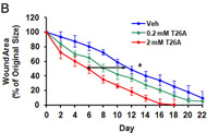 Fig 5B. PGT modulates wound healing rates in diabetic mice. Wound area as a function of time, analyzed using ImageJ software.