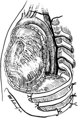 Fig 11. The completed pericardial and diaphragmatic reconstruction. Laterally, the diaphragm is secured by sutures placed around the ribs.