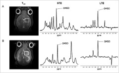 Fig 1. Left to right: MRI T2-weighted (T2w) images showing the MRS voxel (white) positioned in the striatum region, and TE=12ms and TE=136ms spectra [short (STE) and long (LTE) TE, respectively) acquired from a C57BL/6 wild-type (WT) mouse brain (A) and from one group A GL261 tumor-bearing mouse brain at day 16 post-inoculation (B), 30min after intragastric administration of dimethyl sulfoxide (DMSO).