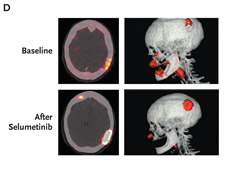 Fig 2. Iodine-124 PET-CT Scans Obtained before and after Selumetinib Treatment in Selected Patients with Positive Responses.