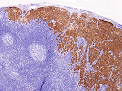 Fig 1. Homogenous labeling of metastatic melanoma for BRAFV600E. All tumor cells in the lymph node show strong cytoplasmic labeling with the antibody VE1.