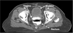 Fig 1. Axial view demonstrating contrast inside the vaginal cuff.