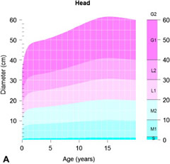 Fig 2a. Chart showing plausible growth dynamics of congenital melanocytic nevi (CMN) diameter from birth to adulthood.