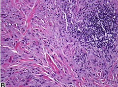 Fig 3. Desmoplastic melanoma, pure type.A. Amelanotic spindle cell melanoma is associated with collagenous stroma and lymphocytic aggregates.