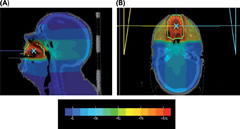 Fig 1. Sagittal (A) and axial (B) slices from a 3D-conformal radiation therapy plan.