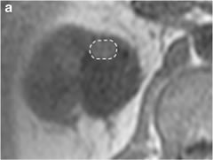Fig 1a. Transverse in-phase (a TE, 4.2 ms) chemical shift 1.5-T MR images in a 56-year-old man with a clear cell carcinoma.