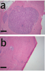Fig 6.BCAT1 knockdown affects tumor growth in vivo. (a,b) Cross-sections of tumors 28 d after intracranial injection of U-87MG glioblastoma cells into CD-1 nu/nu mice. H&E staining is shown for mice injected with control nontargeting shRNA–transduced (a) or BCAT1 shRNAI–transduced (b) cells. Scale bars, 1 mm.