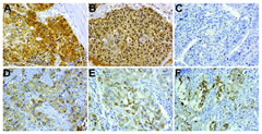 Fig 4. Human HCC samples display cytoplasmic localization of p16.