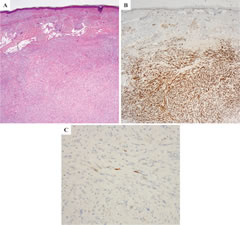 Fig 1. Desmoplastic melanoma (combined cellular spindle cell and desmoplastic melanoma). A) Hematoxylin and eosin-stain of the tumor. B) The tumor cells are homogeneously positive for S100 protein. C) The vast majority of tumor cells are negative for p16.