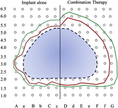 Fig. 1. Sample dosimetric comparison of implant alone to combination therapy. Example of dosimetric comparison of implant alone to combination therapy with EBRT and brachytherapy boost. Blue dashed line: prostate contour; red solid line: 100% isodose line; green solid line: 75% isodose line. Interval spacing between positions of 5 mm. EBRT = external beam radiation therapy.