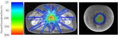 Fig. 1. Stereotactic body radiotherapy (SBRT) and high-dose-rate (HDR) axial color wash dosimetry for normal tissue–prioritized plan. Color wash of the SBRT normal tissue–prioritized plan (left) and the corresponding patient's HDR plan (right). The axis is percent of the prescribed dose.