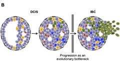 Fig 2. Hypothetical models of progression from in situ to invasive breast cancer. (B) Progression from DCIS to IBC as an evolutionary bottleneck.