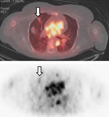 Fig 5. In patient 2, fused images obtained at ~1 h show mild 68Ga-DOTA-F(ab')2-trastuzumab uptake in a lung metastasis.
