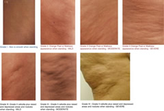 Fig 1. Modified Muller Nuremberger scale showing different grades of cellulite.