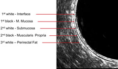 Fig 1. Layers of the rectal wall on endorectal ultrasound imaging.