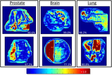 Fig 1.Representative γ images for intensity modulated radiation therapy prostate, brain, and lung patients. The sharp edge in the stripe of failing pixels in the brain field in the second row indicates that part of the linear accelerator couch may be interfering with the transit measurement.
