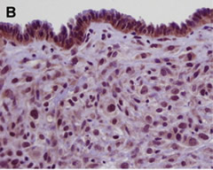 Fig 2. Histopathological phenotype of MCN-like lesions.  (B) High-power view of cyst in panel A reveals dense ovarian-like stroma, and cuboidal epithelium that lacks abundant mucin production.