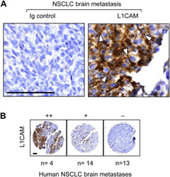 L1CAM Expression in Human Brain Metastases.