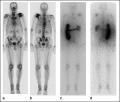 Fig 2. Whole-body scan showing multiple metastatic disease sites in bone.
