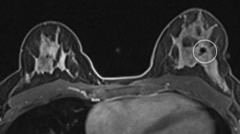 Fig 18. Axial postcontrast three-dimensional T1-weighted image shows susceptibility artifact from a biopsy clip in the left breast (white circle).