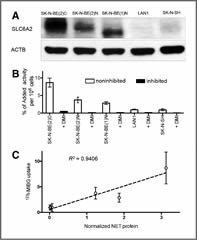 Fig 1. The expression of NET protein in neuroblastoma cell lines.