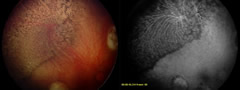 Fig 1. Representative case (patient 4) of salt-and-pepper retinopathy after intravitreal melphalan.