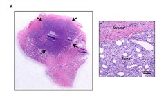 Fig 1. Human prostate cancer tumor harvesting and flow cytometry plot illustrating specific populations from a human prostate cancer. (A) Tumor nodules are harvested to generate a cell suspension. Tumor content of the processed sample is confirmed using conventional Hematoxylin and Eosin staining. (B) Cells staining positively for DAPI are excluded to isolate only viable cells.