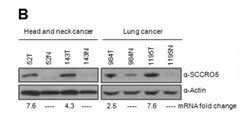 Fig 4b. SCCRO5 overexpression is common in human tumors and correlates with outcomes. Western blot analysis showing SCCRO5 protein expression in representative head and neck and lung SCCs (T) and matched normal (N) samples.