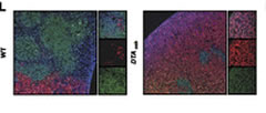 Fig 2. (L) Immunofluorescence staining of spleen sections showing DsRed-MLL-AF9 cells, CD45-expressing (green) cells, and 4,6-diamidino-2-phenylindole nuclei staining (blue). Left panel (×10); right small panels (×63).