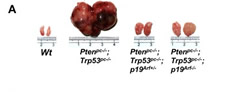 Fig 1. p19Arf deficiency significantly suppresses prostate tumorigenesis in Pten/Trp53 mice. (A) Actual sizes of representative tumors from anterior prostates (APs) of Wt, Ptenpc–/–; Trp53pc–/– double-mutant, and Ptenpc–/–; Trp53pc–/–; p19Arf–/– triple-mutant mice at 6 months of age.