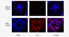Fig 2. Cisplatin–DNA adduct formation and immunofluorescence: Visualization of cisplatin intrastrand DNA adducts in one patient's tumor tissue sample before and after HIPEC; the other two patients showed similar results.