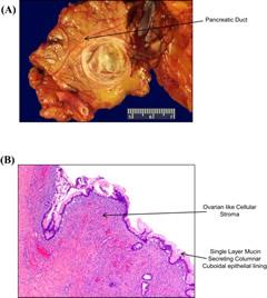 Intraductal papillary mucinous neoplasm.